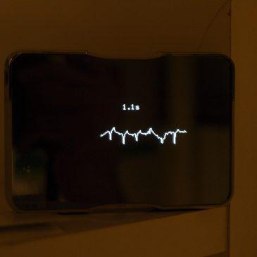 Elektrokardiográfia , Holter EKG